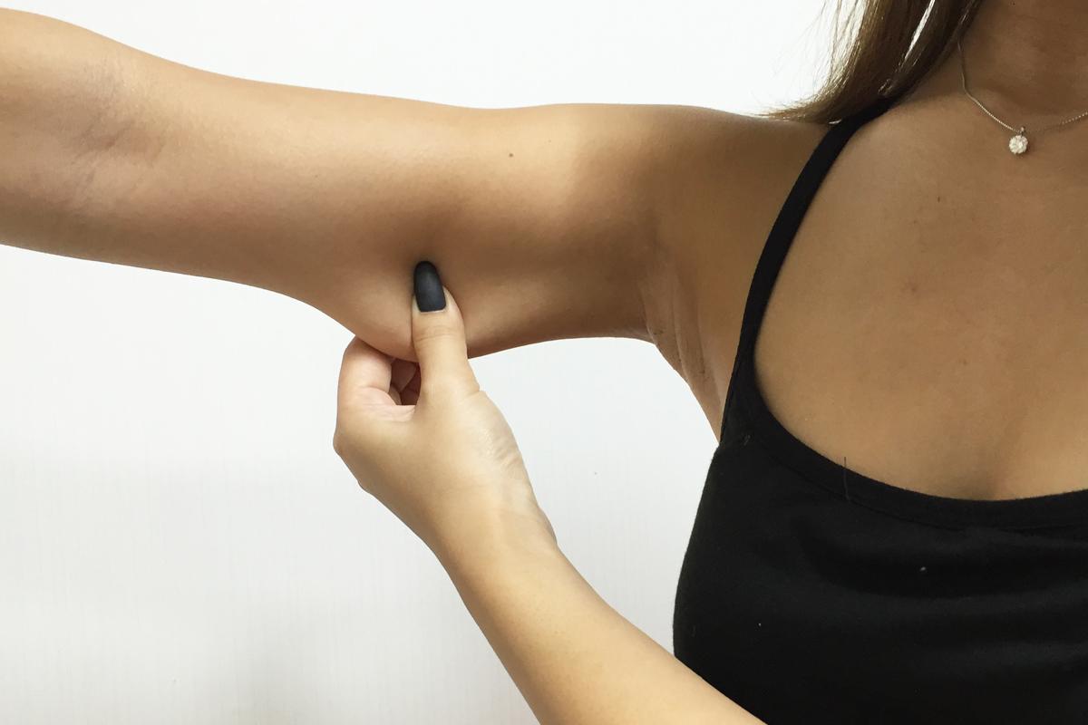 二の腕の脂肪が付いている部分