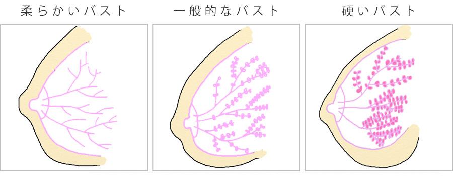 柔らかい胸と硬い胸における乳腺と脂肪の比較