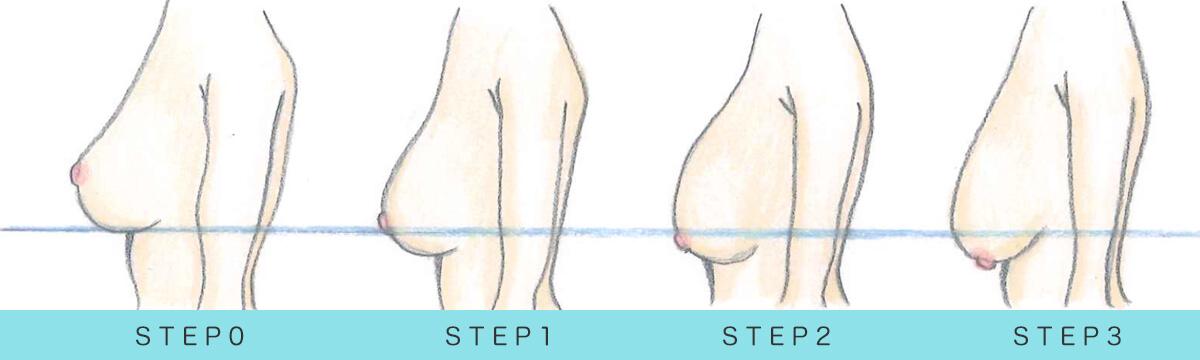 各ステップ別、垂れ胸度合いの説明イラスト