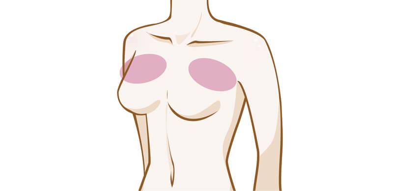 バストのハリが少しなくなり、感触も柔ら かくなります。上胸デコルテ部分とその脇側が削げるようになくなっていきます。